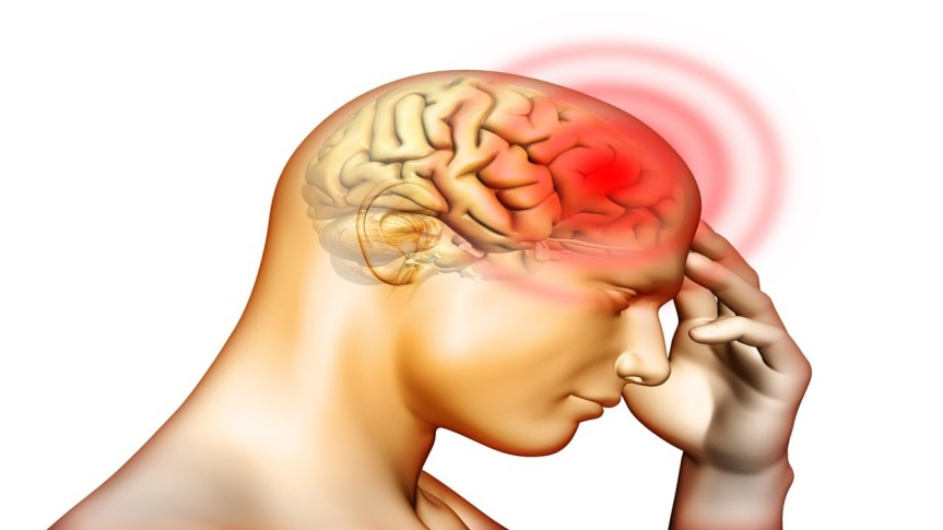 Low-dose aspirin may be linked to bleeding in theskull