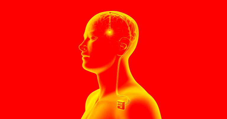 Science is moving forward in China, surgeons are treating addiction with brainimplants