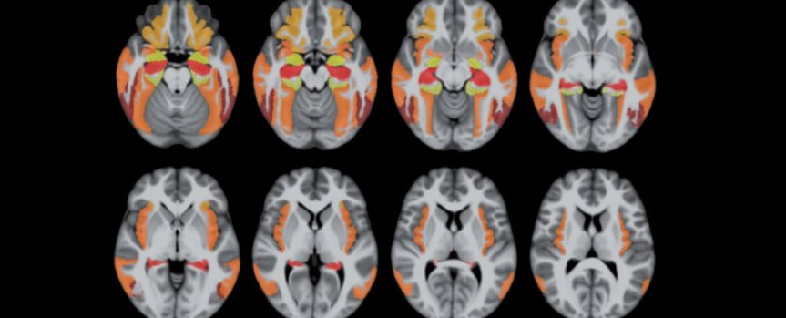 There is a common brain disease that looks like Alzheimer's but it isnot!