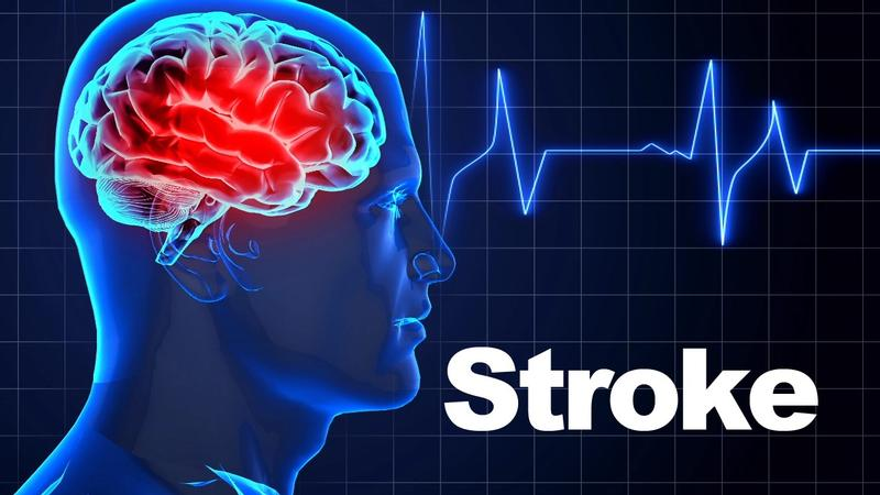 A guide to spotting strokesymptoms